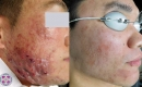 Before and After Laser Acne Treatment