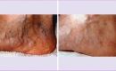 Before and After Laser Treatment for Spider Veins and Broken Capillaries