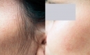 Before and After Facial Laser Hair Removal