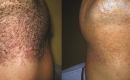 Before and After Beard Laser Hair Removal