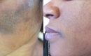 Before and After Laser Treatment for Melasma