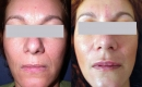 Before and After SpectraLift Non Surgical Laser Facelift