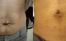 Before and After Stretch Mark Removal and Skin Tightening